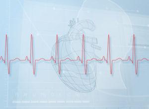Bradycardia errors New Jersey